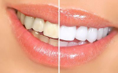 estetyka stomatologiczna