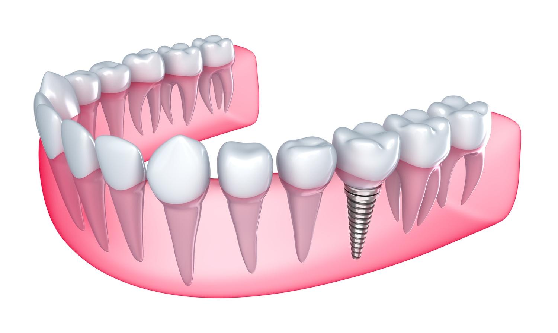 implanty zębów poznań